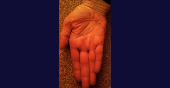 hand-improv-2
