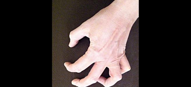 hand-improv-3-thumbnail